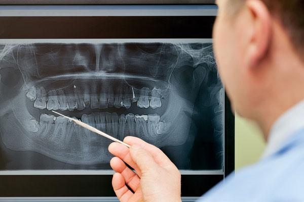 Curso de Diagnóstico e Planejamento em correções dento-maxilares